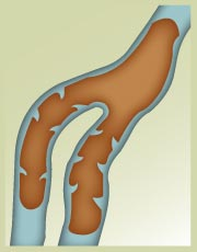 When vein valves become damaged through injury or age, the don't work properly, creating swelling and dark sections.